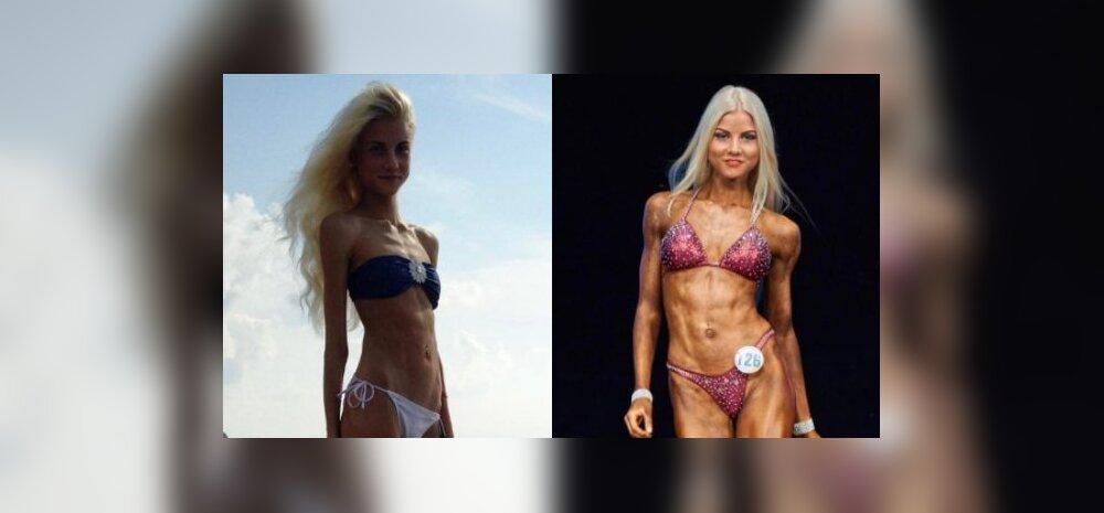Eesti tüdruk võitlusest anoreksiaga: olin ju nagu lehekülg anatoomiaõpikust