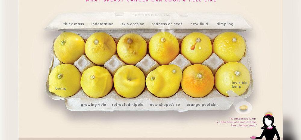 PILT, mis võib päästa su elu: vaata hoolega — kõik need võivad olla rinnavähi sümptomid!