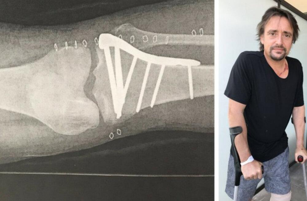"""Taas jalul: Ränga avarii teinud """"Top Geari"""" mees Richard Hammond taastub operatsioonist"""