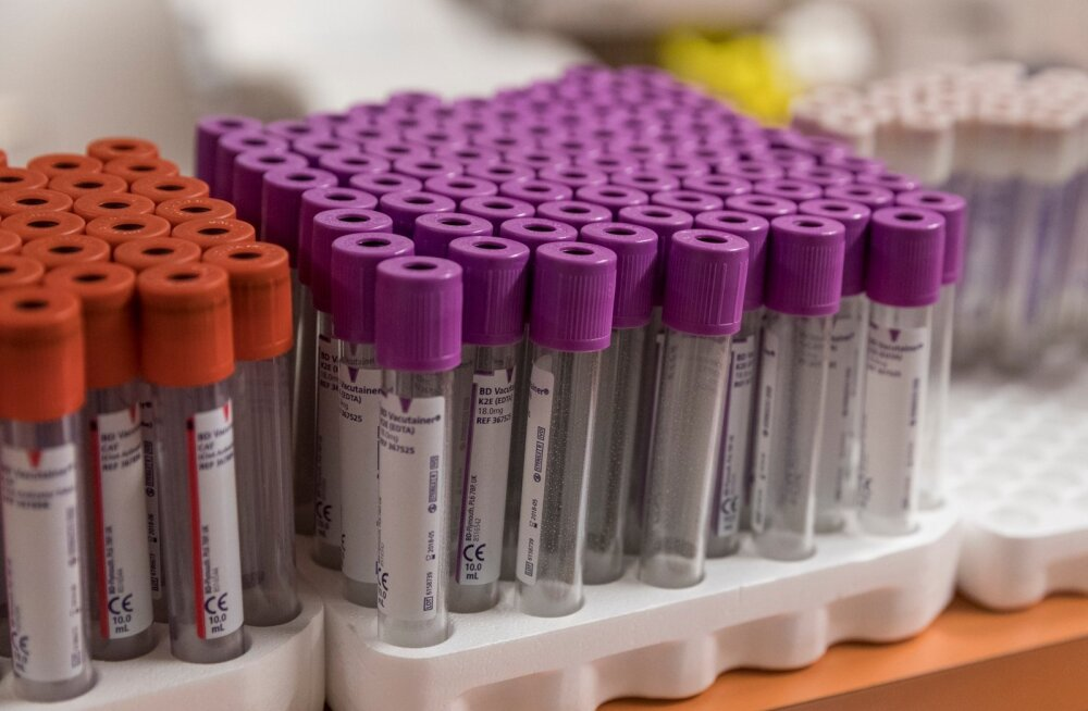 Кровь женщин-доноров опасна для больных мужчин?