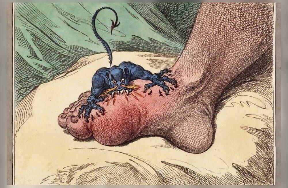 19. sajandil epideemiateks kujunenud haigused valmistavad taas probleeme