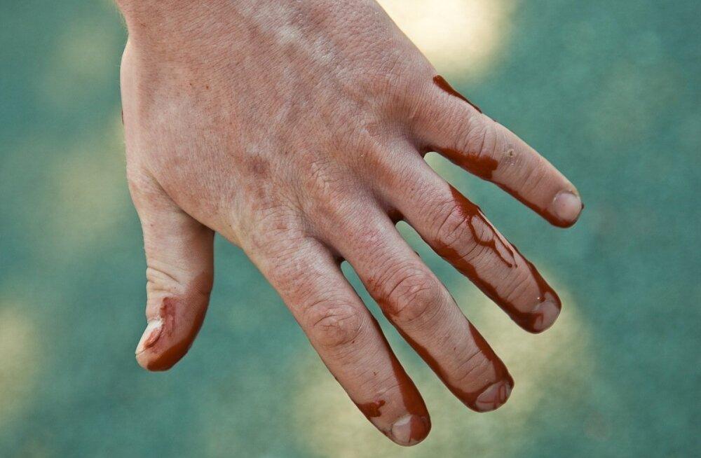 Eluks vajalik teadmine: kõik sellest, kuidas hooldada haava