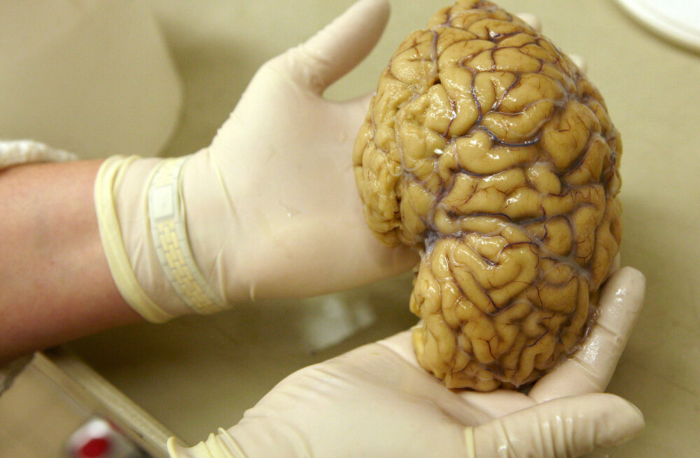 Tehnikaülikooli teadlaste osalusel tehtud uurimus on lähedal läbimurdele Parkinsoni tõve ravis