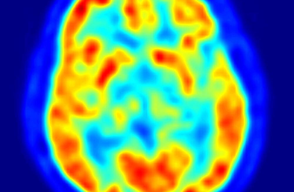 Hämmastav: inimene vajab oma ajust vaid poolt
