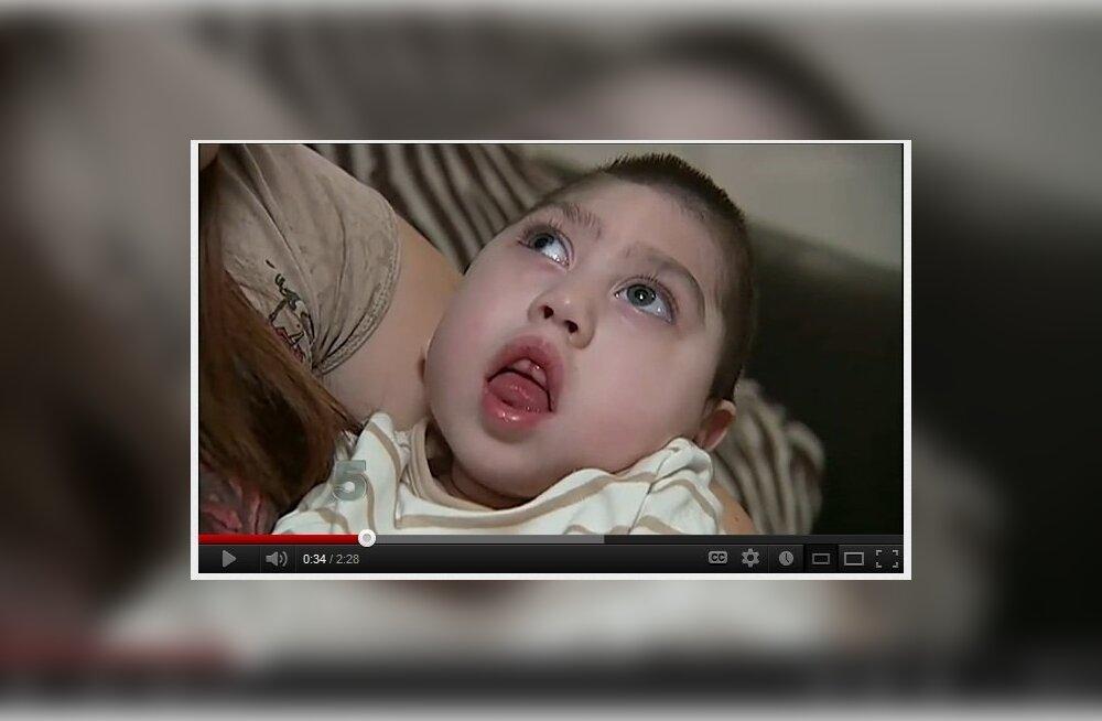12a655ddcdf W3 uudised - Poiss elas neli aastat, kuigi suur osa ajust oli puudu