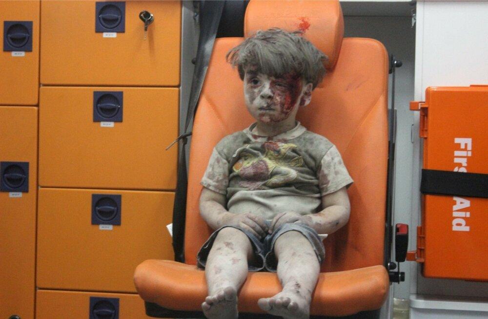 Aleppo varemetest leitud nelja-aastane Omran, kelle vend hukkus samas õhurünnakus.