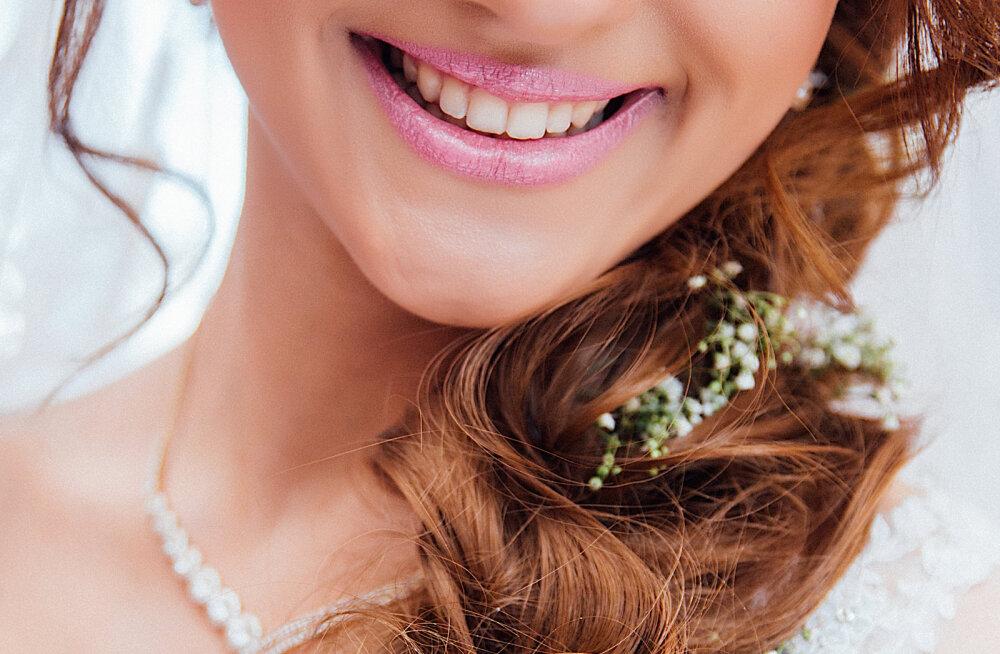 Suuhügienisti 7 nõuannet, kuidas ise hambaid puhaste ja valgetena hoida