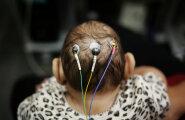 Hispaanias tuli ilmale Euroopa esimene Zika viiruse põhjustatud arenguhäirega laps