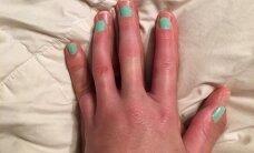 Tõelise armastuse žest: mees teeb oma sõrme kaotanud abikaasale imelise kingituse