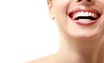 Saa säravam naeratus: 7 nippi, mis muudavad su hambad valgemaks