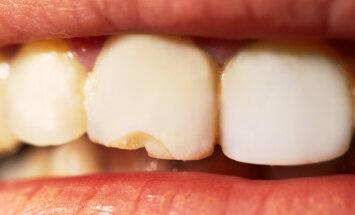 Isehakanud hambaarsti visiidil käinud naine: ma olen kaks korda sünnitanud, aga sellist valu nagu seal, ei soovi vaenlaselegi