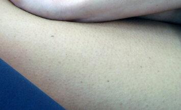 Pruunid täpid kätel ja kehal - nn maksaplekke pole olemas, on solaarlentiigod