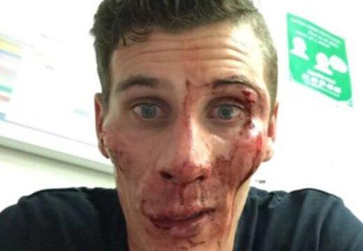 FOTO | Kergejõustiku maailmameistrit jõhkralt peksnud ründaja: aga ta ise alustas!